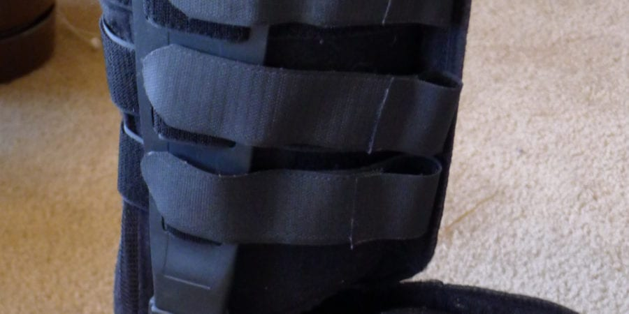 Broken Ankle Experience – Part 3 of 5